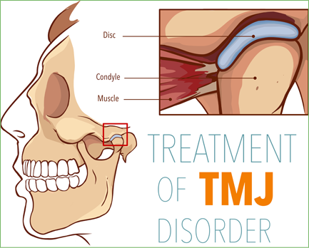TMJ and facial pain yorba linda